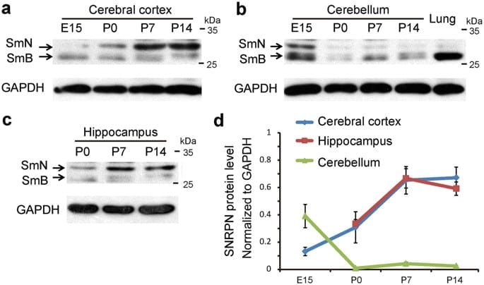 The autism-related gene SNRPN regulates cortical and spine …