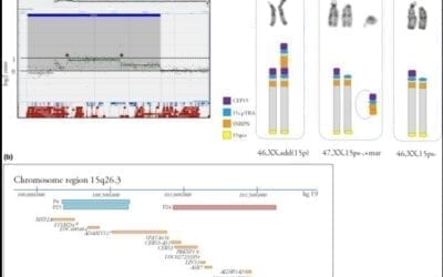 Pathogenic copy number variants are detected in a subset of patients with gastrointestinal malformations