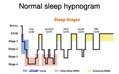 Atypical Sleep Architecture in Children with 15q11.2-13.1 Duplication (Dup15q) Syndrome (4436)