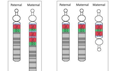 Maternal 15q Duplication Syndrome