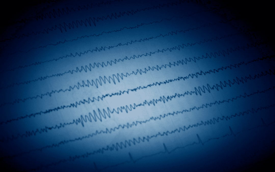 Epilepsy Community at an Inflection Point: